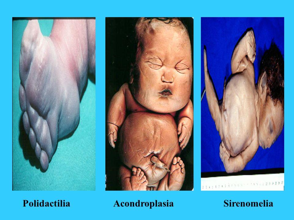 Polidactilia Acondroplasia Sirenomelia