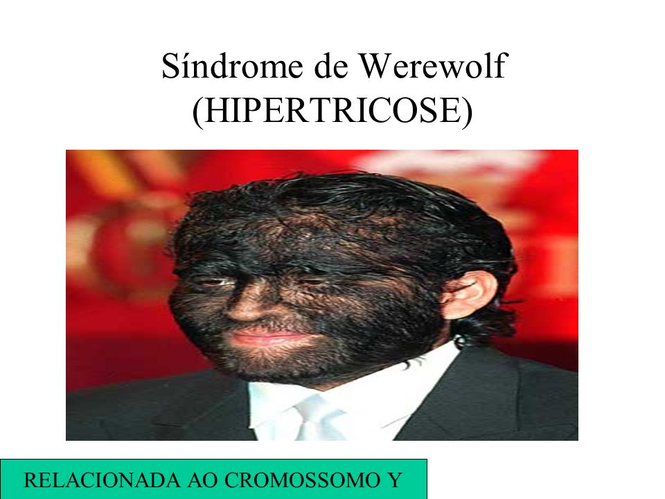Síndrome de Werewolf (HIPERTRICOSE)