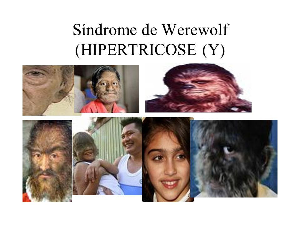 Síndrome de Werewolf (HIPERTRICOSE (Y)