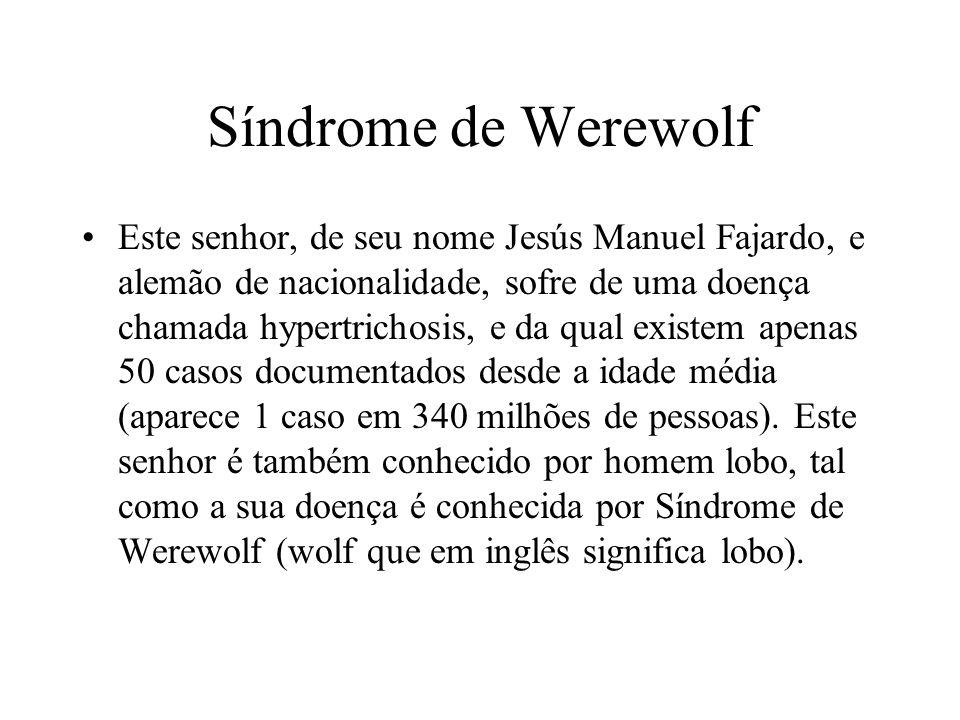 Síndrome de Werewolf