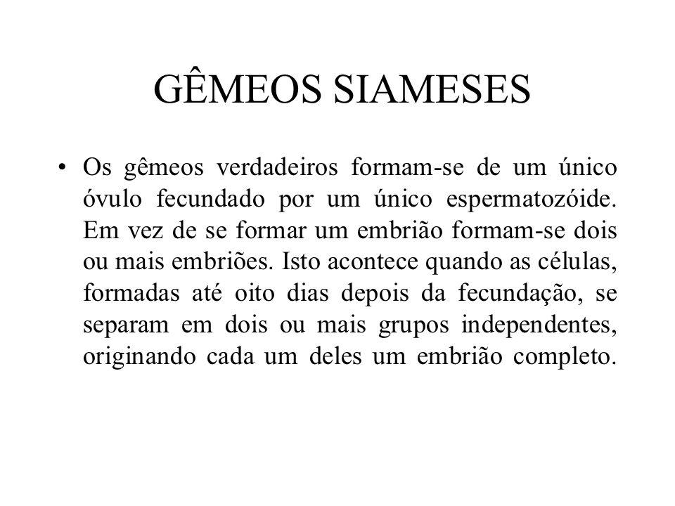 GÊMEOS SIAMESES