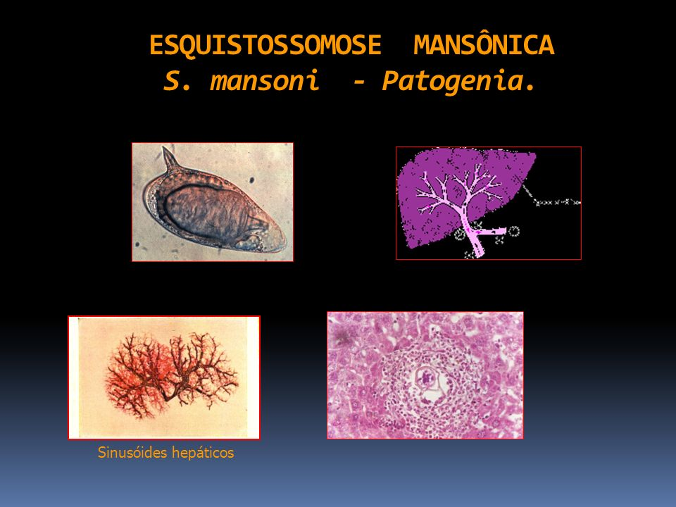 ESQUISTOSSOMOSE MANSÔNICA S. mansoni - Patogenia.