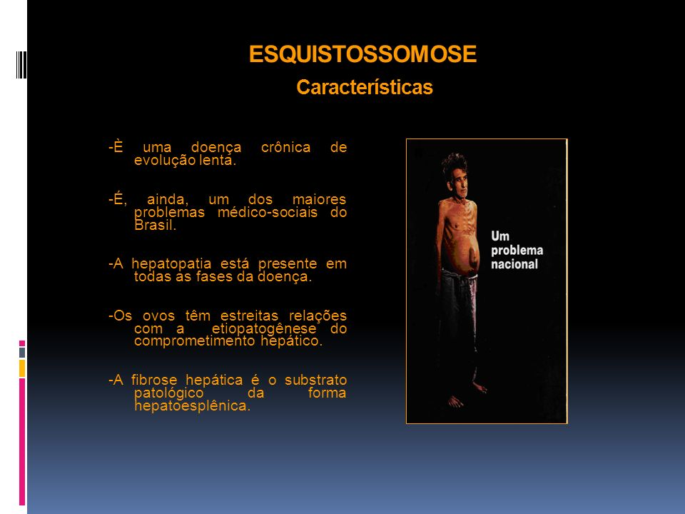ESQUISTOSSOMOSE Características