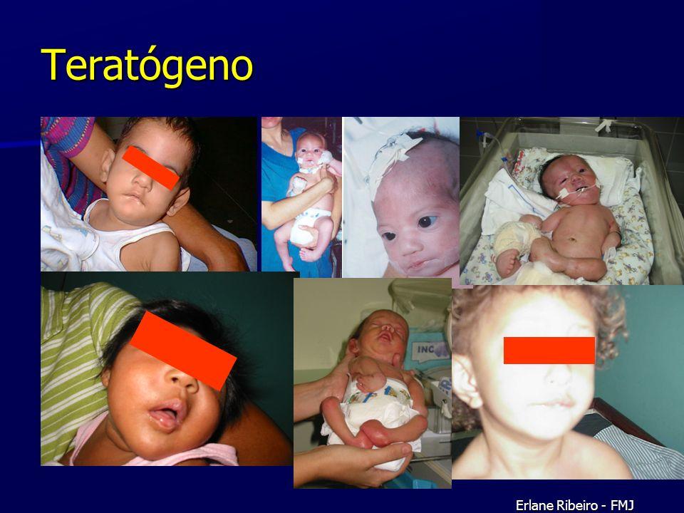 Teratógeno Erlane Ribeiro - FMJ