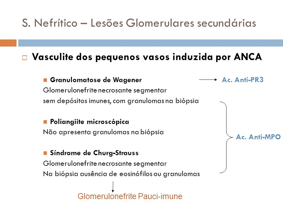 S. Nefrítico – Lesões Glomerulares secundárias