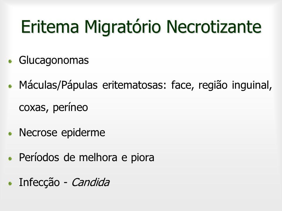 Eritema Migratório Necrotizante