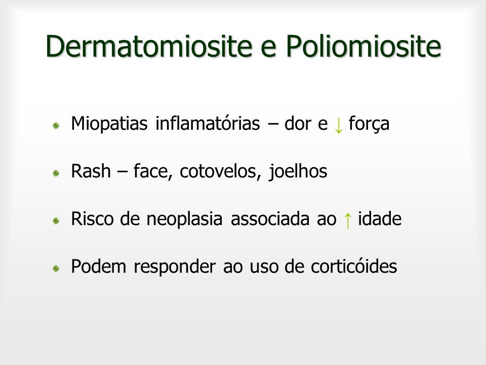 Dermatomiosite e Poliomiosite