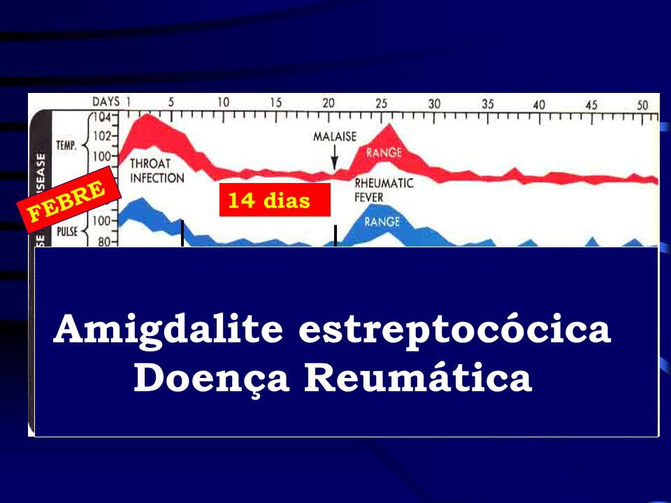 Amigdalite estreptocócica Doença Reumática