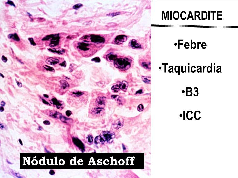 Febre Taquicardia B3 ICC