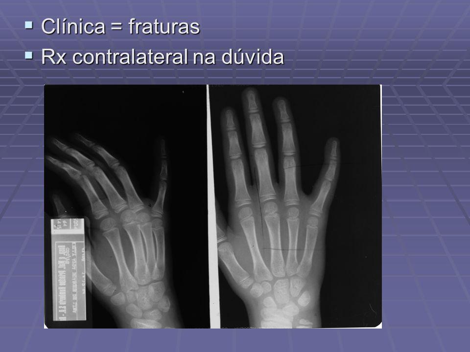 Clínica = fraturas Rx contralateral na dúvida
