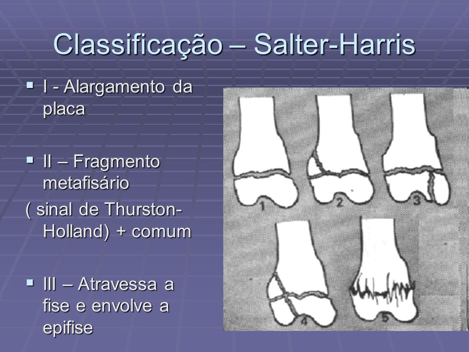 Classificação – Salter-Harris