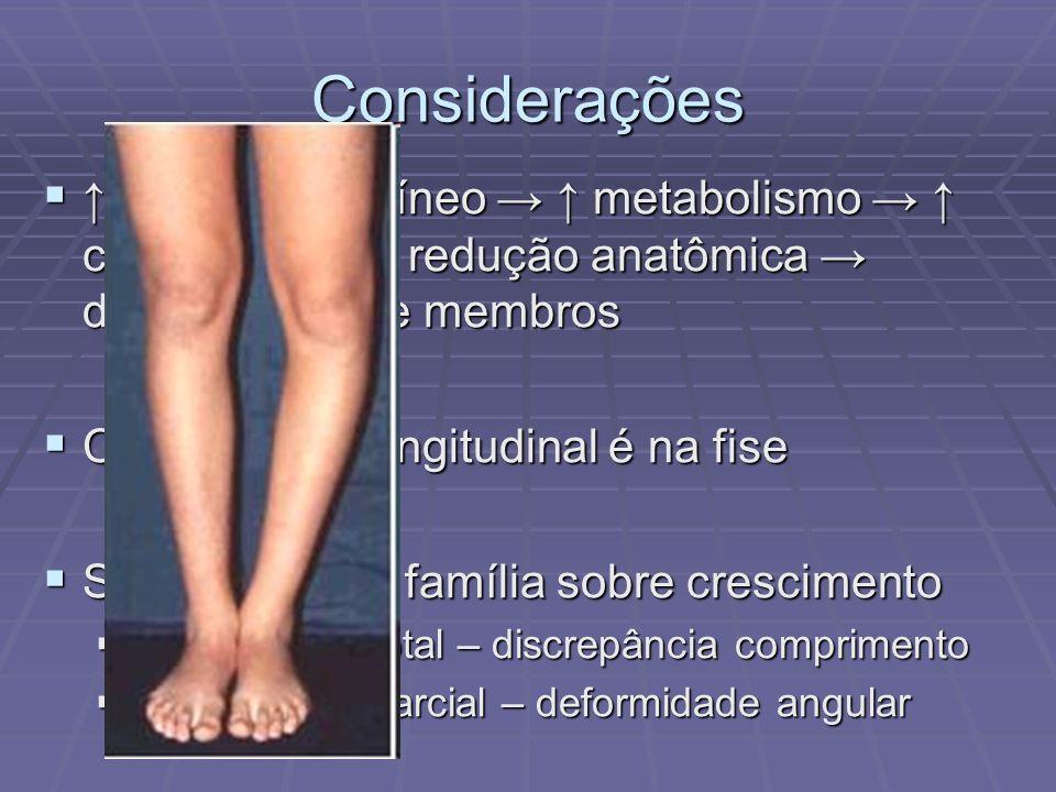 Considerações ↑ aporte sanguíneo → ↑ metabolismo → ↑ crescimento → redução anatômica → discrepância de membros.