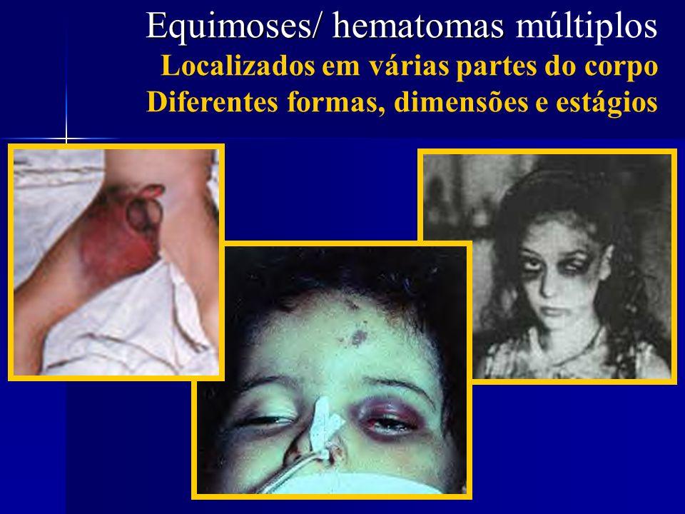 Equimoses/ hematomas múltiplos Localizados em várias partes do corpo Diferentes formas, dimensões e estágios