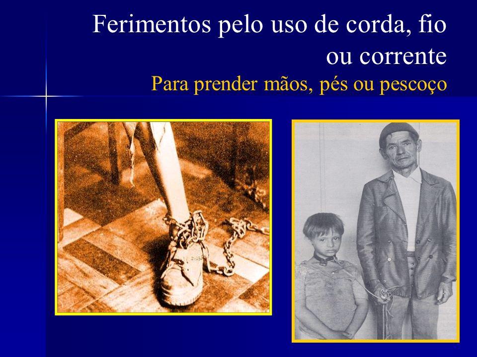 Ferimentos pelo uso de corda, fio ou corrente Para prender mãos, pés ou pescoço