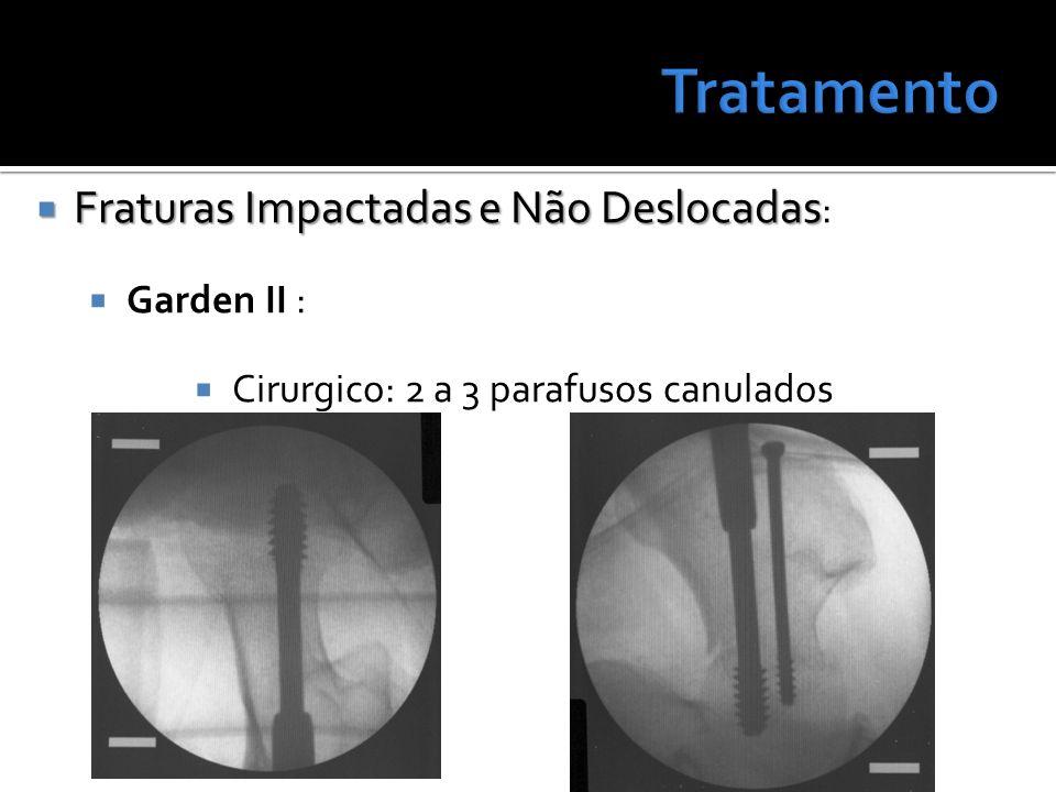 Tratamento Fraturas Impactadas e Não Deslocadas: Garden II :