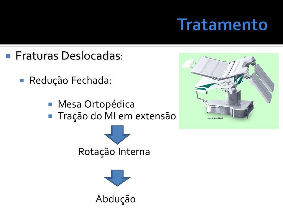 Tratamento Fraturas Deslocadas: Redução Fechada: Mesa Ortopédica