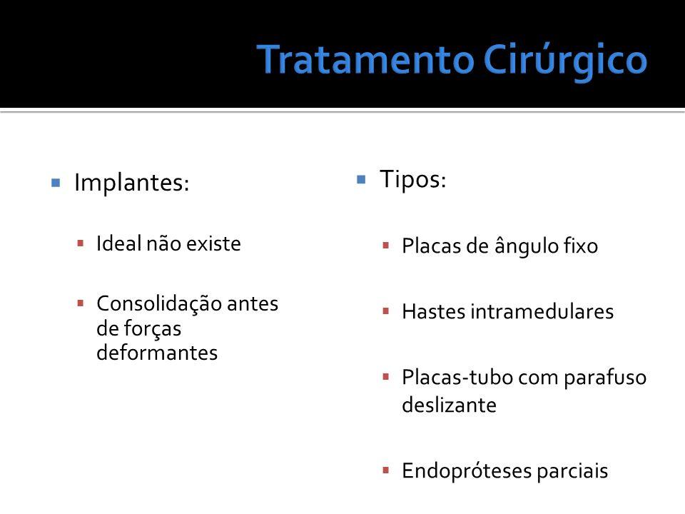 Tratamento Cirúrgico Tipos: Implantes: Placas de ângulo fixo
