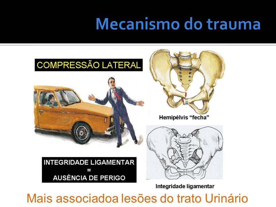 Mecanismo do trauma Mais associadoa lesões do trato Urinário