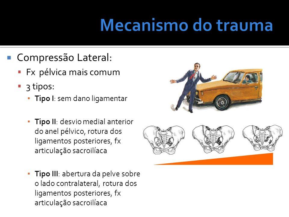 Mecanismo do trauma Compressão Lateral: Fx pélvica mais comum 3 tipos: