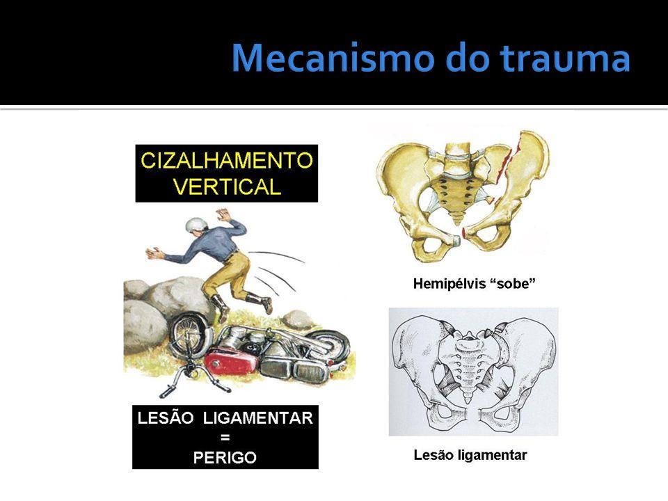 Mecanismo do trauma
