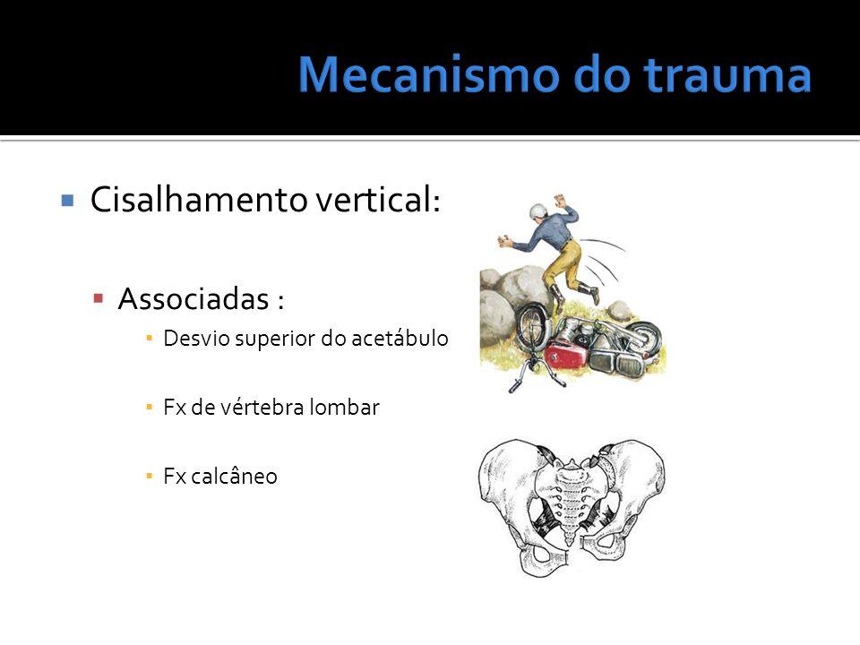 Mecanismo do trauma Cisalhamento vertical: Associadas :
