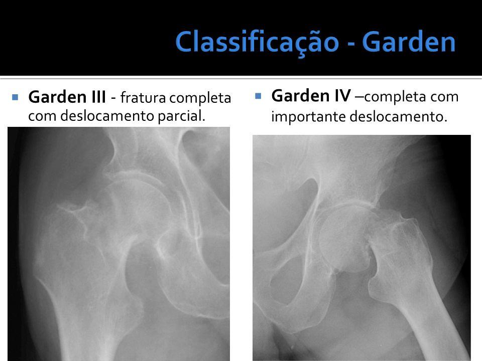 Classificação - Garden