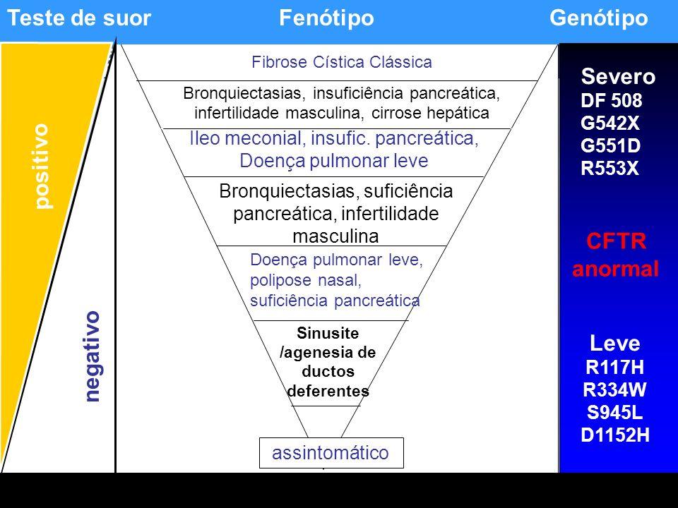 Sinusite /agenesia de ductos deferentes