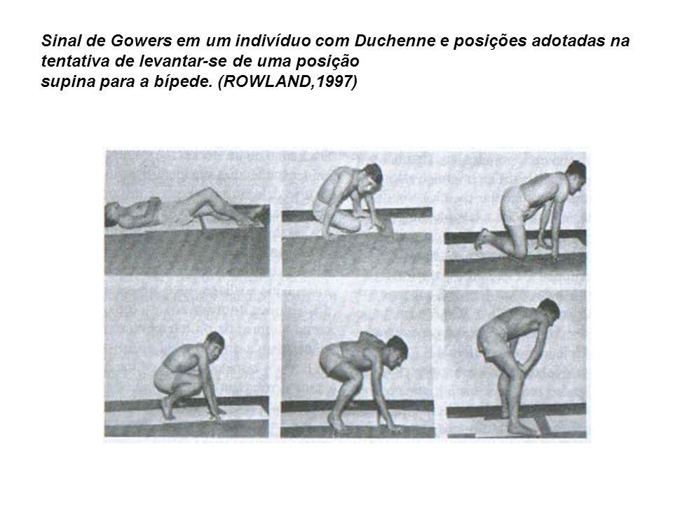 Sinal de Gowers em um indivíduo com Duchenne e posições adotadas na tentativa de levantar-se de uma posição supina para a bípede.