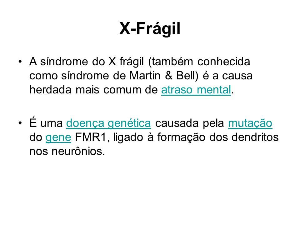 X-Frágil A síndrome do X frágil (também conhecida como síndrome de Martin & Bell) é a causa herdada mais comum de atraso mental.