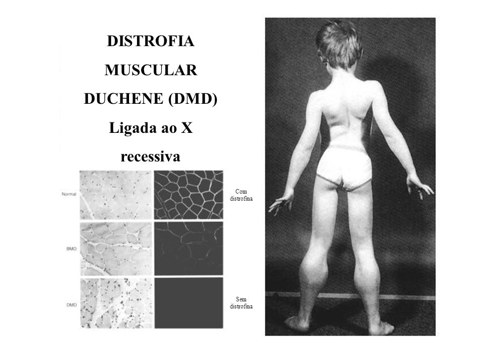 DISTROFIA MUSCULAR DUCHENE (DMD) Ligada ao X recessiva
