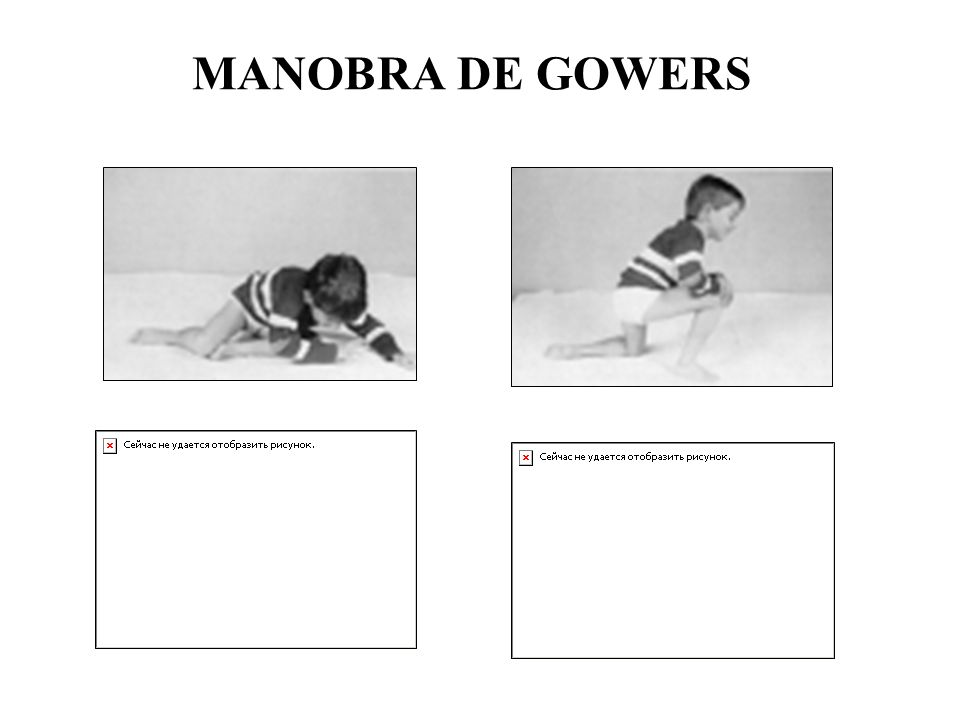 MANOBRA DE GOWERS