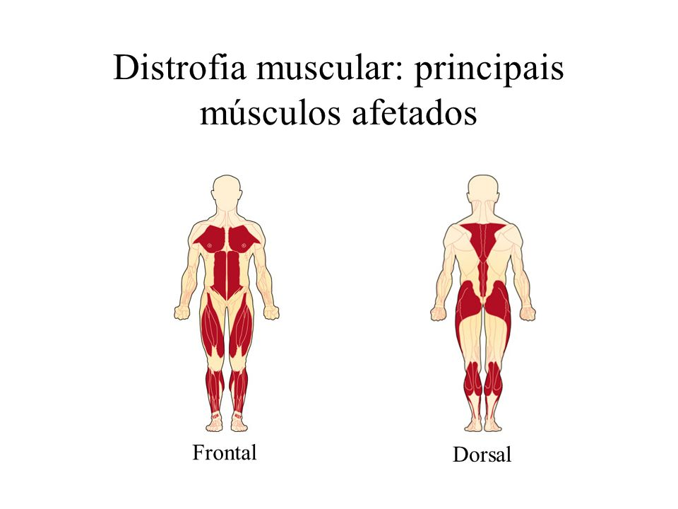 Distrofia muscular: principais músculos afetados