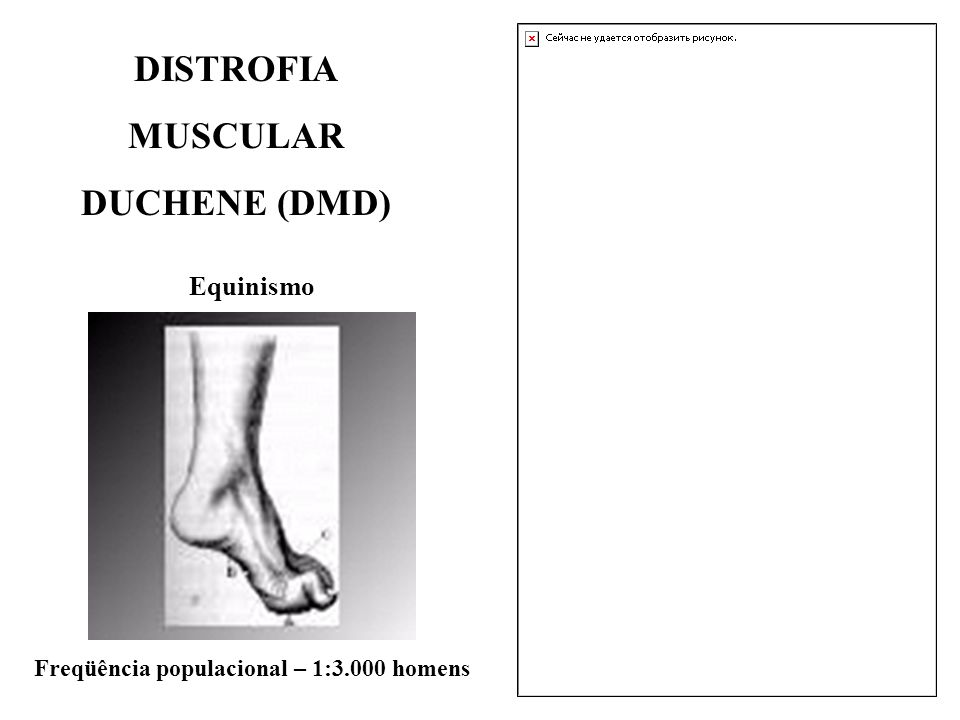 DISTROFIA MUSCULAR DUCHENE (DMD)