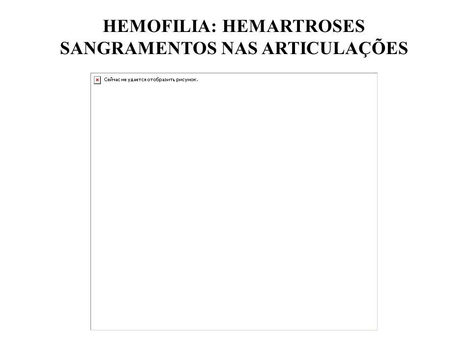 HEMOFILIA: HEMARTROSES SANGRAMENTOS NAS ARTICULAÇÕES