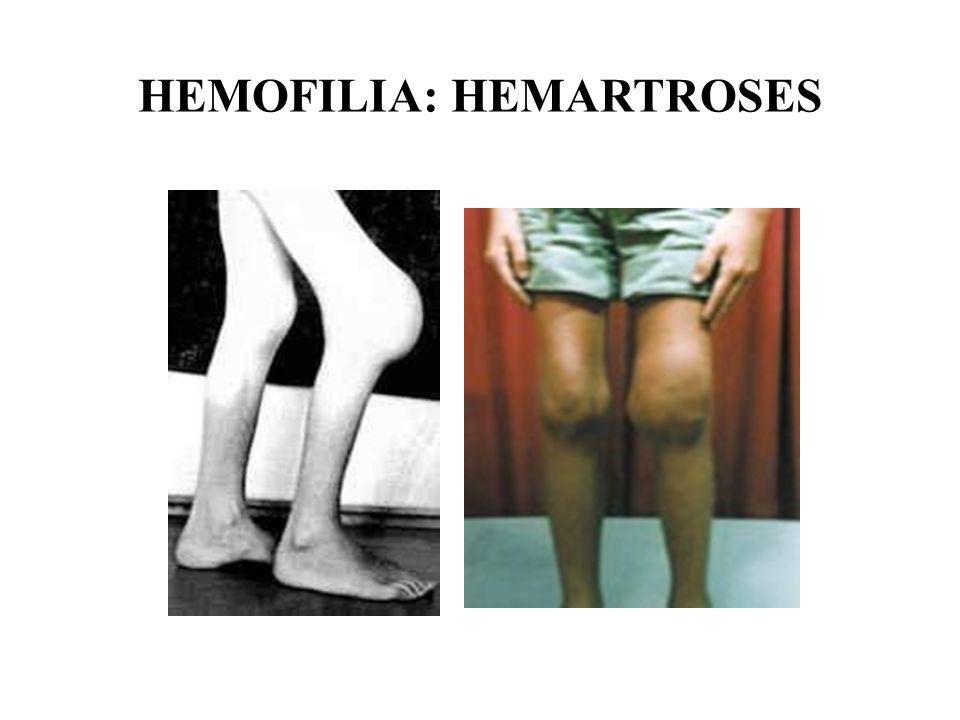 HEMOFILIA: HEMARTROSES