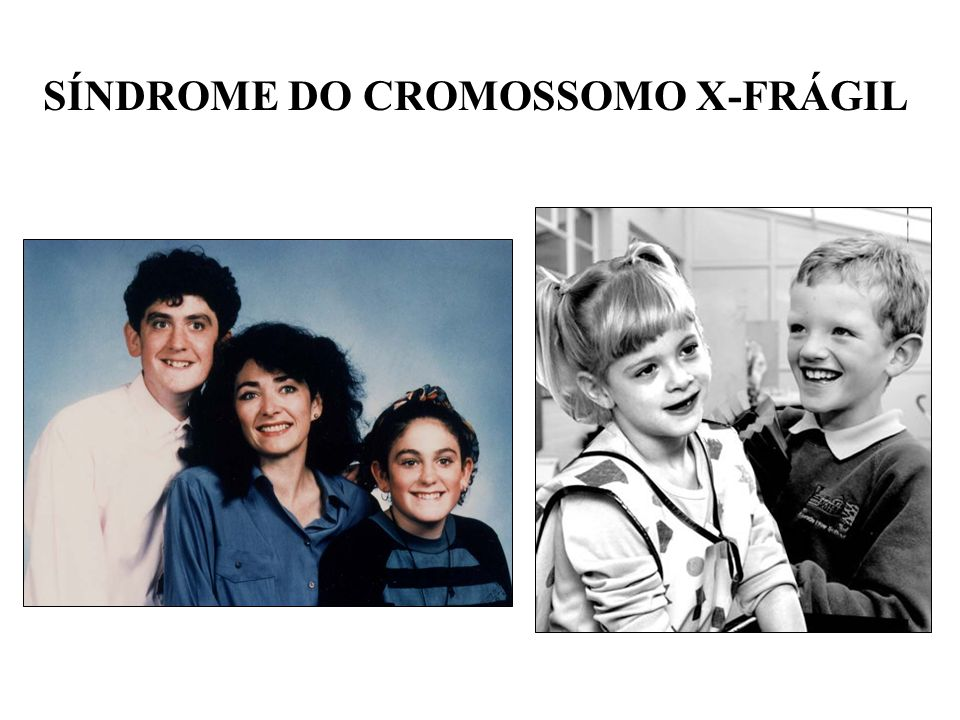 SÍNDROME DO CROMOSSOMO X-FRÁGIL