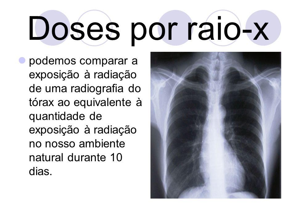 Doses por raio-x