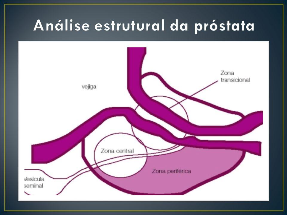 Análise estrutural da próstata