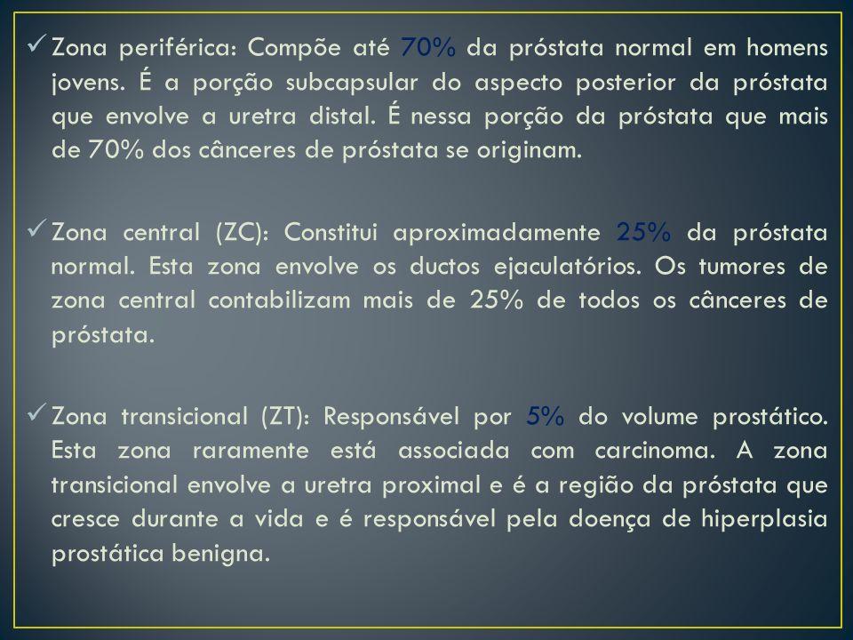 Zona periférica: Compõe até 70% da próstata normal em homens jovens