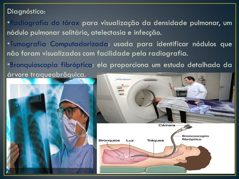 Diagnóstico: Radiografia do tórax para visualização da densidade pulmonar, um nódulo pulmonar solitário, atelectasia e infecção.