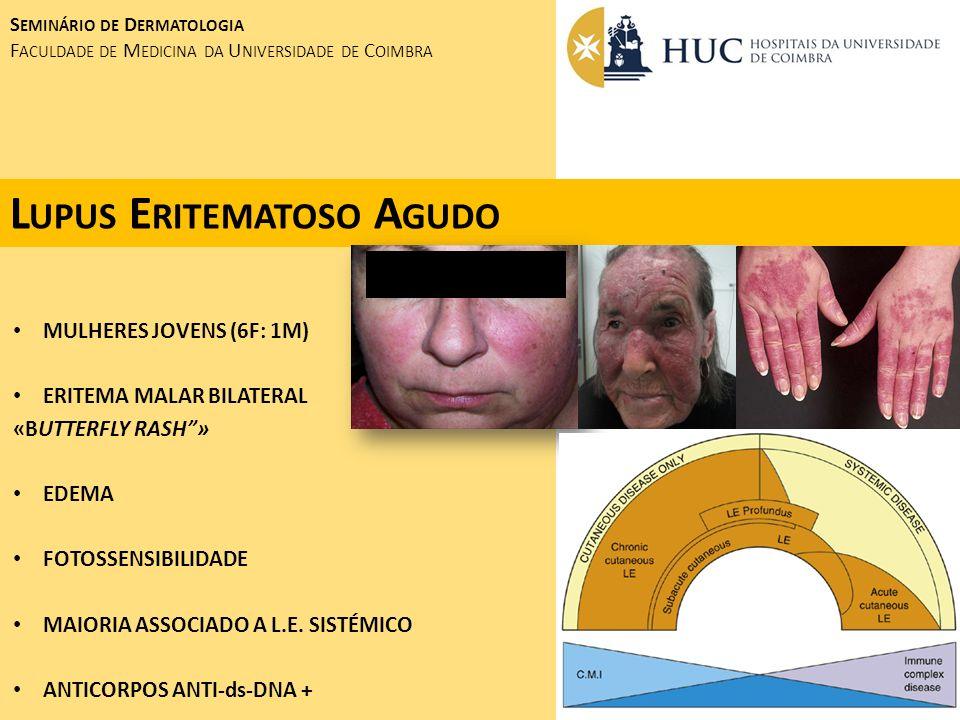 Lupus Eritematoso Agudo