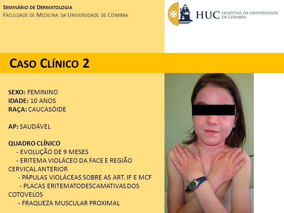 Caso Clínico 2 SEXO: FEMININO IDADE: 10 ANOS RAÇA: CAUCASÓIDE