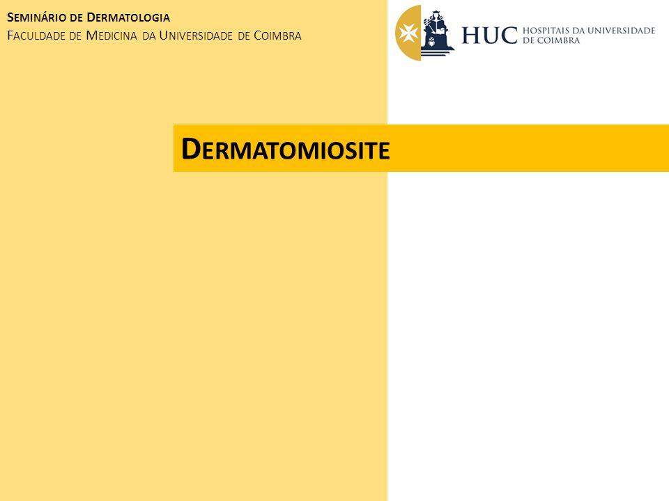 Dermatomiosite Seminário de Dermatologia
