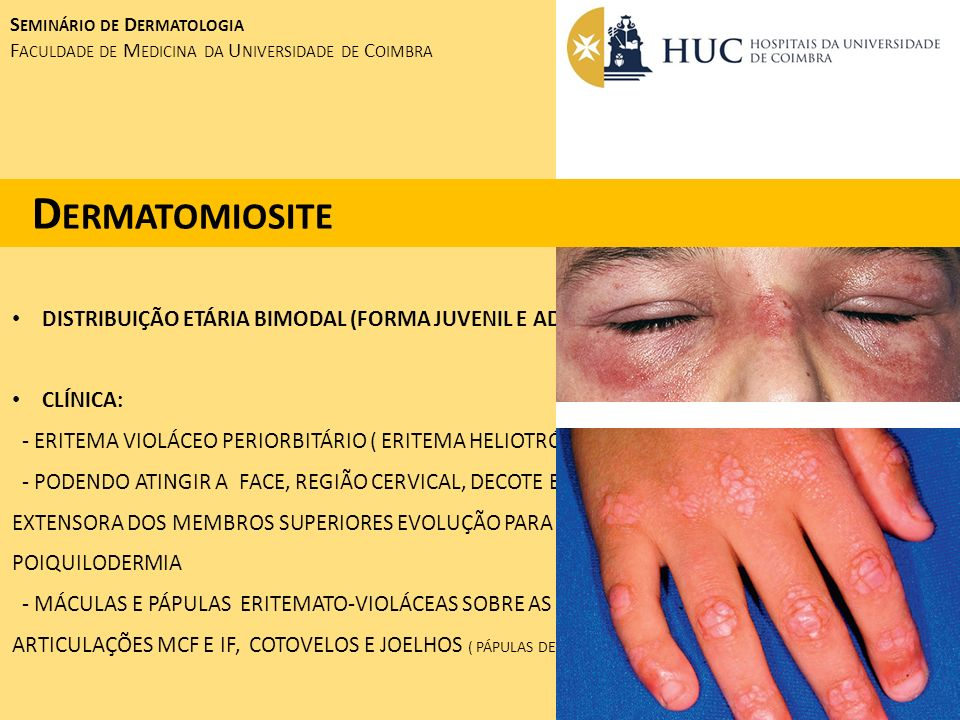 Dermatomiosite DISTRIBUIÇÃO ETÁRIA BIMODAL (FORMA JUVENIL E ADULTA)
