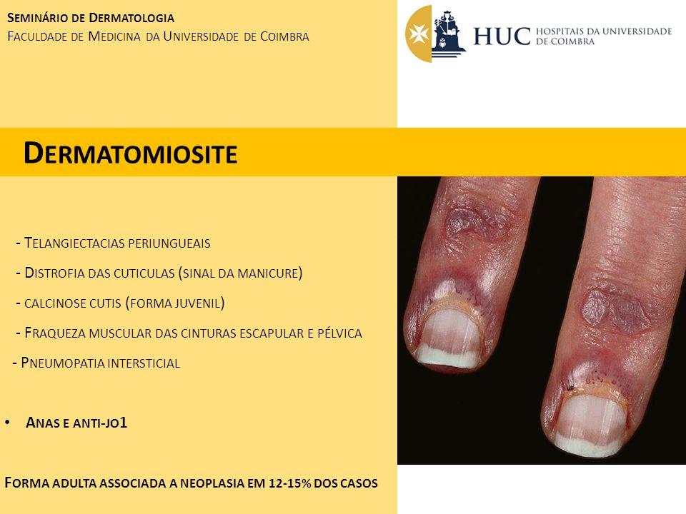 Dermatomiosite - Telangiectacias periungueais