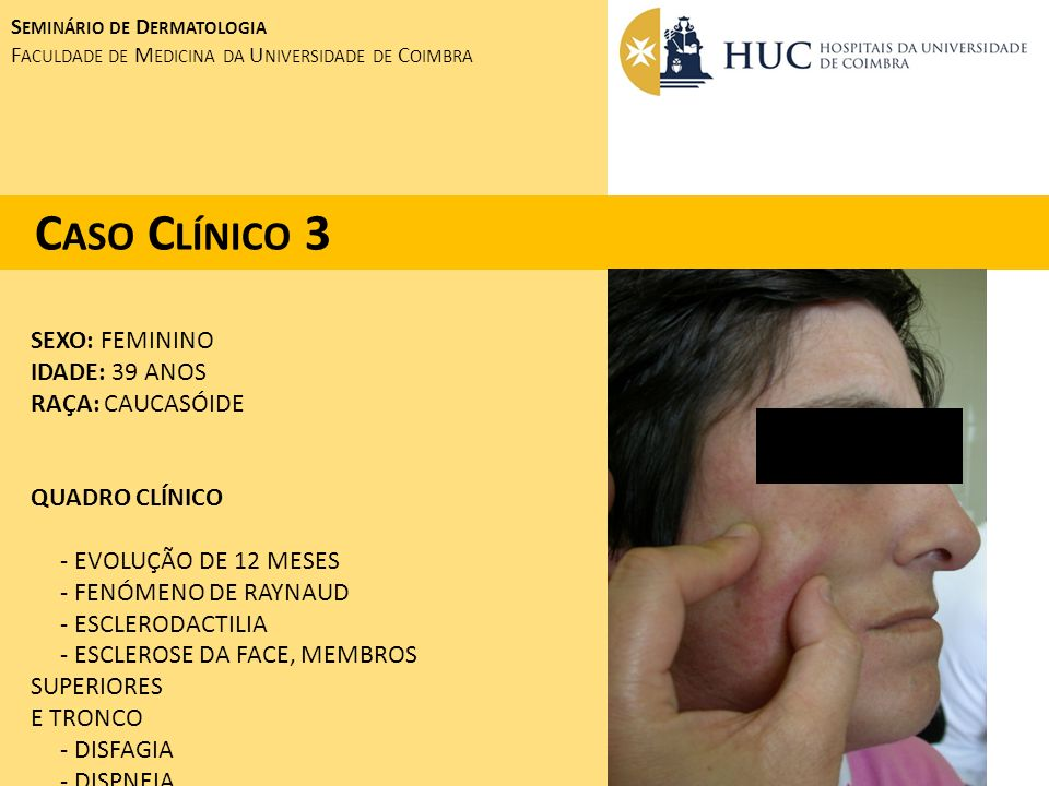 Caso Clínico 3 SEXO: FEMININO IDADE: 39 ANOS RAÇA: CAUCASÓIDE