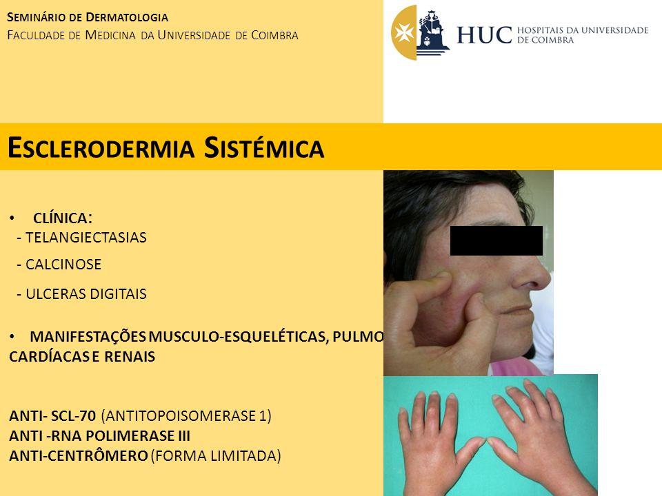 Esclerodermia Sistémica