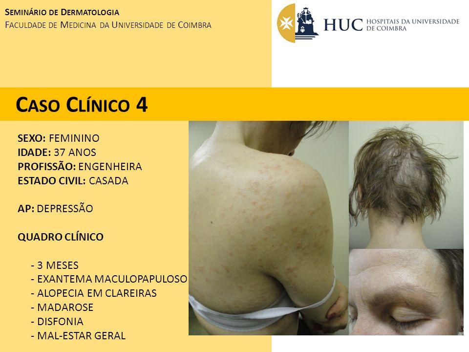 Caso Clínico 4 SEXO: FEMININO IDADE: 37 ANOS PROFISSÃO: ENGENHEIRA