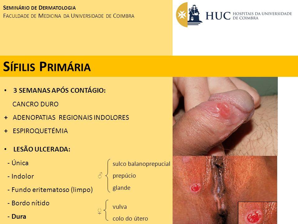 Sífilis Primária 3 SEMANAS APÓS CONTÁGIO: CANCRO DURO