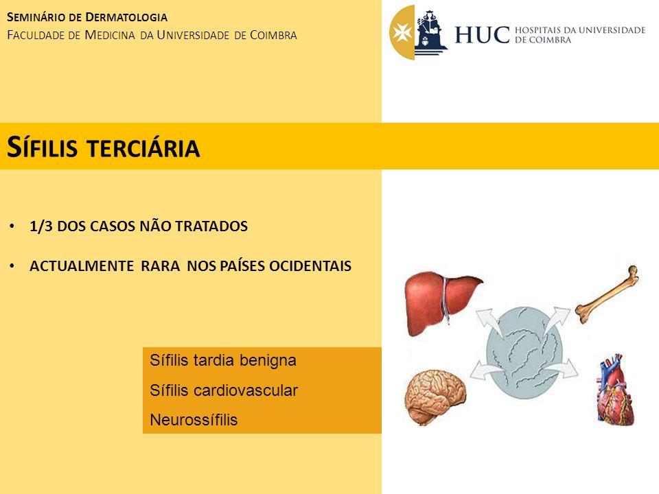 Sífilis terciária 1/3 DOS CASOS NÃO TRATADOS